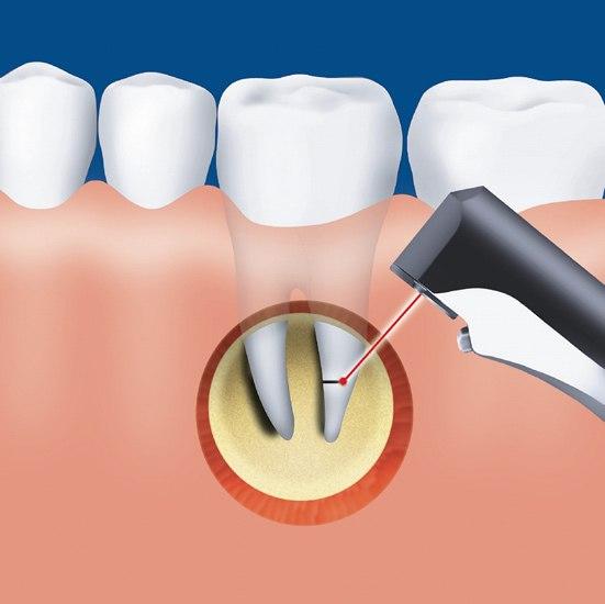 Резекцию корня зуба это как