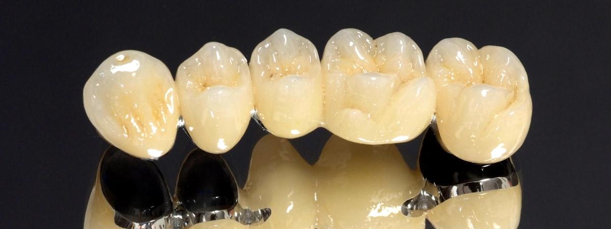 Коронка на зуб с напылением фото