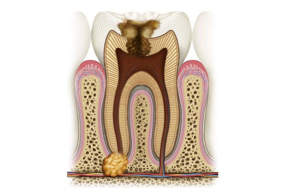 Показания к резекции верхушки корня зуба.