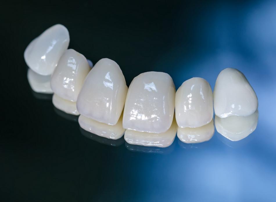 Цена на металлокерамическую коронку на зуб.