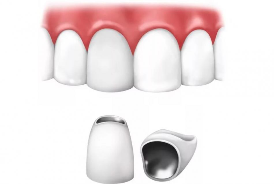 Сколько стоит коронка на зуб из металлокерамики?