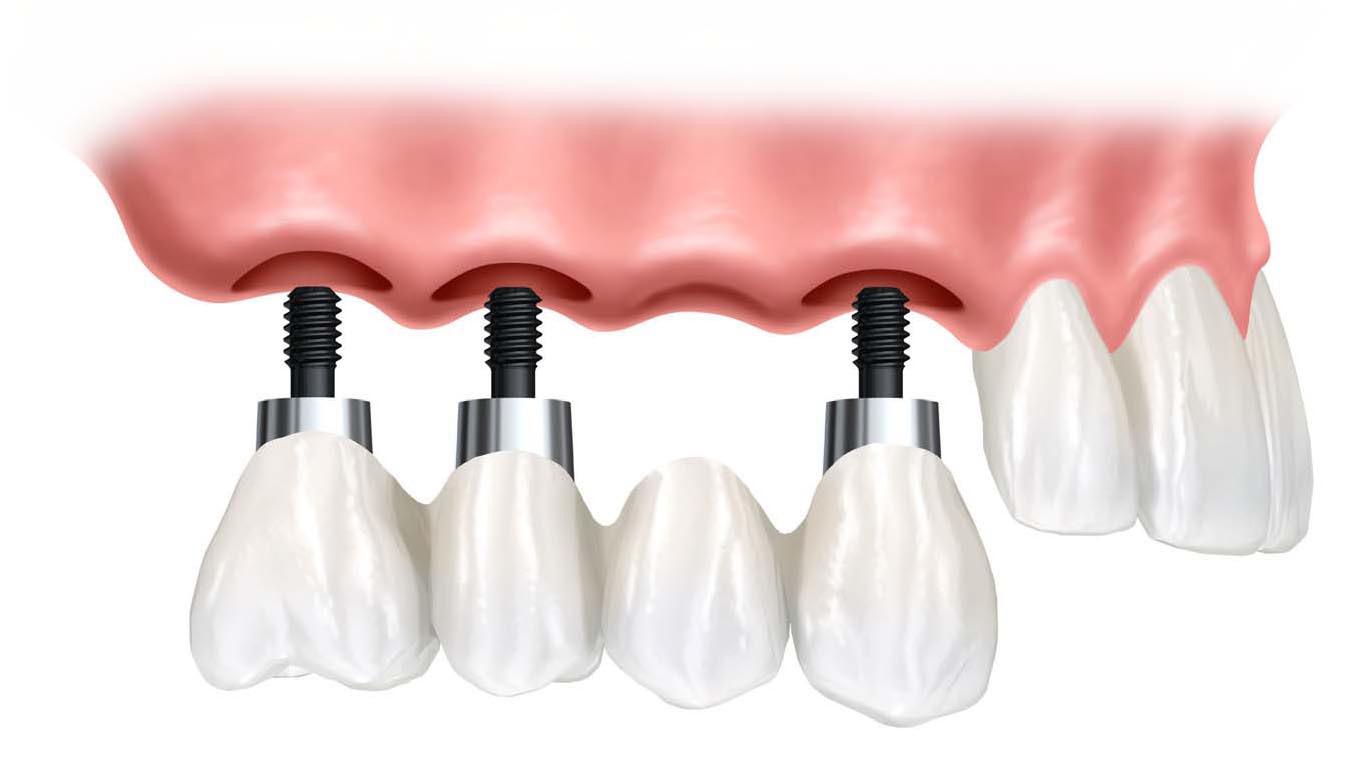 услуги стоматологии имплантация зубов