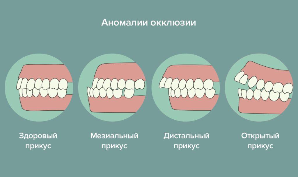 прикусы зубов человека картинки после экспериментов