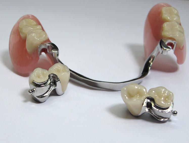 Бюгельный протез зубов: стоимость установки.