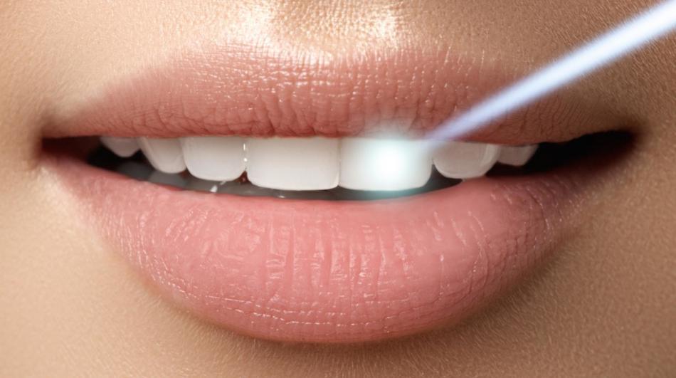 Лазерное отбеливание зубов - щадящая процедура