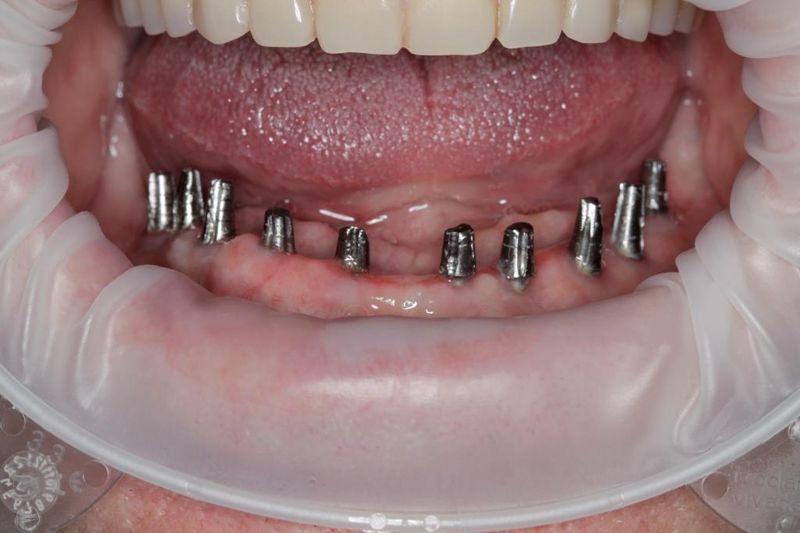 Мини-импланты зубов: установка и виды