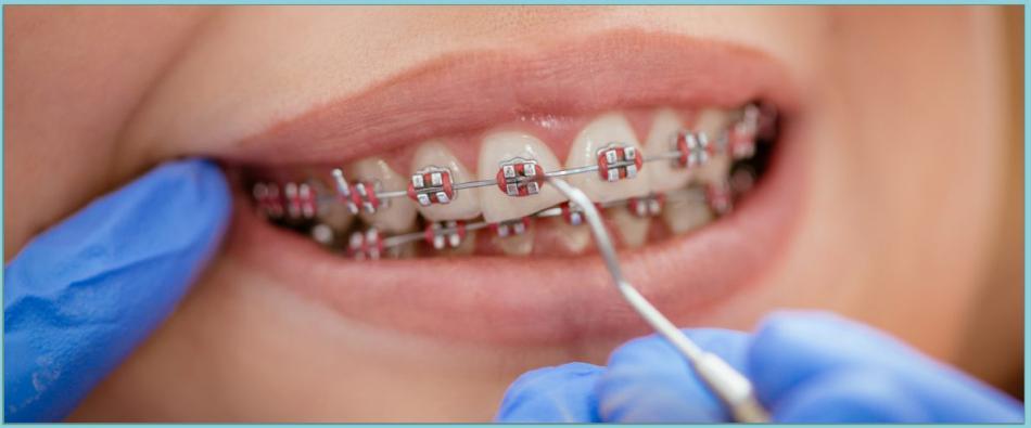 Как проходит снятие брекетов с зубов